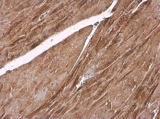 alpha Actinin 2 Antibody in Immunohistochemistry (Paraffin) (IHC (P))