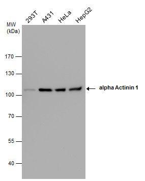 alpha Actinin 1 Antibody in Western Blot (WB)
