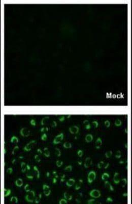 Dengue Virus Type 2 NS1 Antibody in Immunofluorescence (IF)