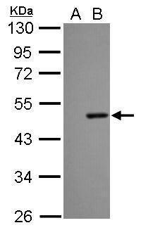 Dengue Virus Type 2 NS1 Antibody in Western Blot (WB)