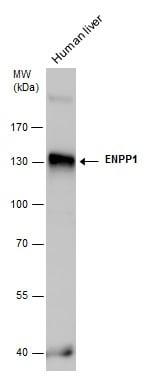 ENPP1 Antibody in Western Blot (WB)