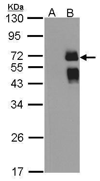 ST6GAL1 Antibody in Western Blot (WB)