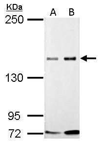 GLI3 Antibody in Western Blot (WB)