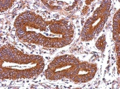 HLA-DQB2 Antibody in Immunohistochemistry (Paraffin) (IHC (P))
