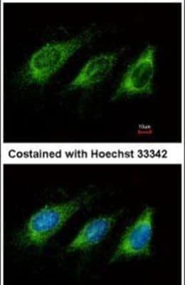 AID Antibody in Immunofluorescence (IF)
