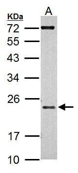 AID Antibody in Western Blot (WB)