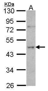 ORC4 Antibody in Western Blot (WB)
