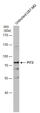 SLC20A2 Antibody in Western Blot (WB)