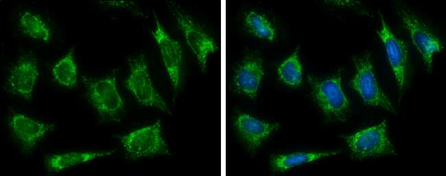 HADH Antibody in Immunocytochemistry (ICC)