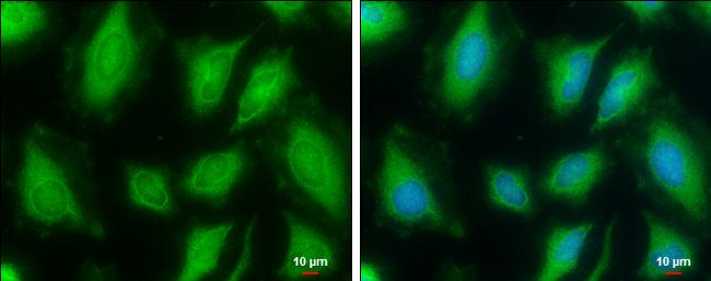 FDPS Antibody in Immunocytochemistry (ICC)