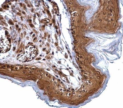XPD Antibody in Immunohistochemistry (Paraffin) (IHC (P))