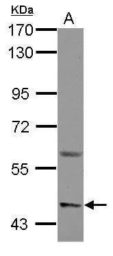 ASIC1 Antibody in Western Blot (WB)
