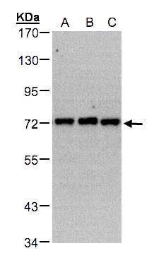 PIP5K1C Antibody in Western Blot (WB)