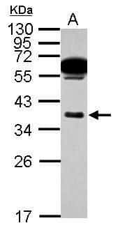 Mast Cell Chymase Antibody in Western Blot (WB)