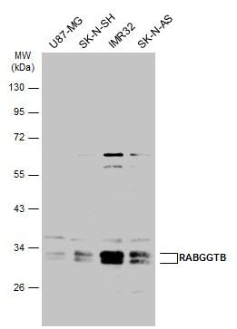 RABGGTB Antibody in Western Blot (WB)