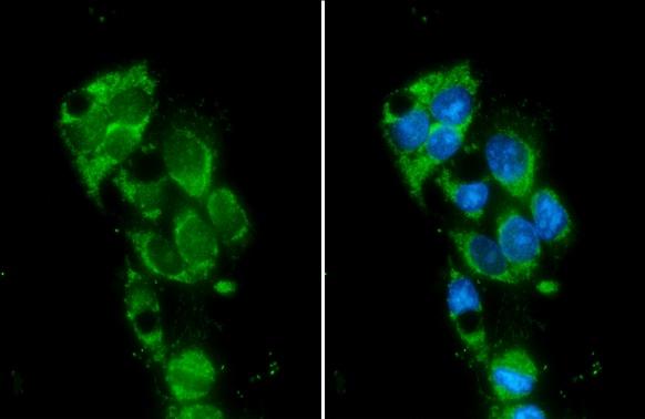 Monoamine Oxidase B Antibody in Immunocytochemistry (ICC)
