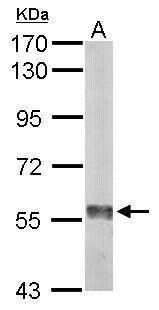 Monoamine Oxidase B Antibody in Western Blot (WB)