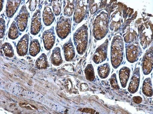 CD2AP Antibody in Immunohistochemistry (Paraffin) (IHC (P))