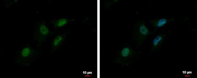 MTA2 Antibody in Immunocytochemistry (ICC/IF)