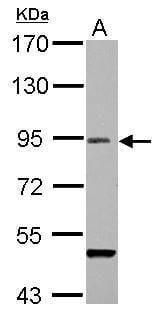 RANBP9 Antibody in Western Blot (WB)