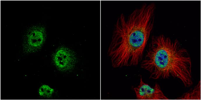 ZWINT Antibody in Immunocytochemistry (ICC)