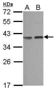 Carbonic Anhydrase VIII Antibody in Western Blot (WB)