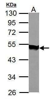 AGK Antibody in Western Blot (WB)
