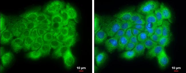 PI4KA Antibody in Immunocytochemistry (ICC)