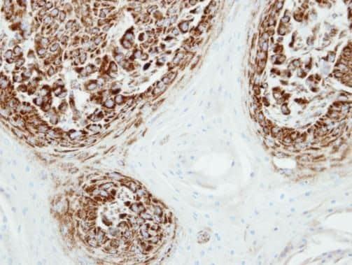 Adenylate Kinase 2 Antibody in Immunohistochemistry (Paraffin) (IHC (P))
