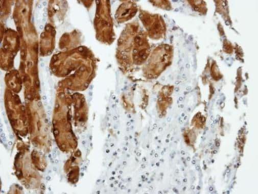 Anillin Antibody in Immunohistochemistry (Paraffin) (IHC (P))