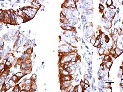 GPR30 Antibody in Immunohistochemistry (Paraffin) (IHC (P))