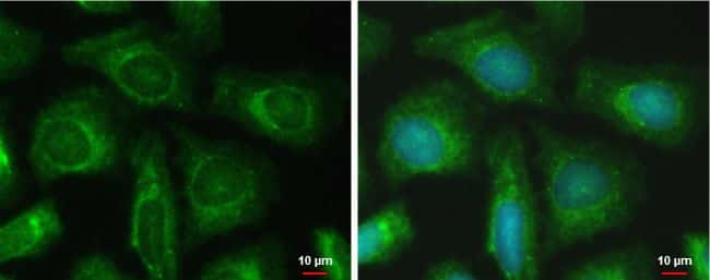 PFKFB4 Antibody in Immunofluorescence (IF)