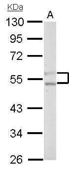 PFKFB4 Antibody in Western Blot (WB)