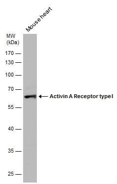 ACVR1 Antibody in Western Blot (WB)