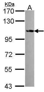 FES Antibody in Western Blot (WB)
