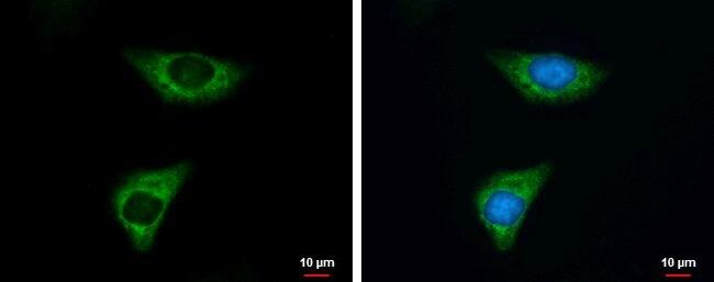 PKM2 Antibody in Immunofluorescence (IF)