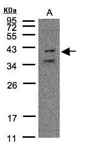 P2Y11 Antibody in Western Blot (WB)