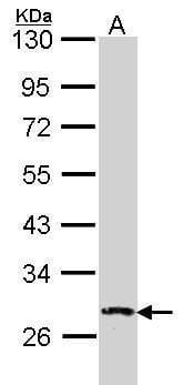 DUSP2 Antibody in Western Blot (WB)