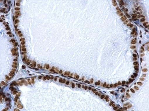 Histone H2A.X Antibody in Immunohistochemistry (Paraffin) (IHC (P))