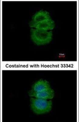 alpha TTP Antibody in Immunofluorescence (IF)