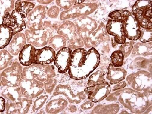 INHBB Antibody in Immunohistochemistry (Paraffin) (IHC (P))