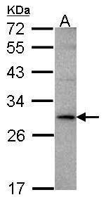 TL1A Antibody in Western Blot (WB)