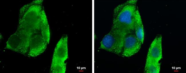 CXCL13 Antibody in Immunocytochemistry (ICC)