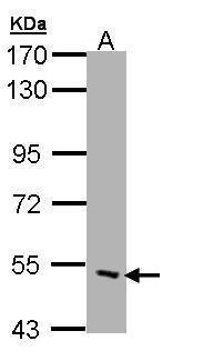 CHRND Antibody in Western Blot (WB)