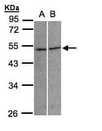 GLRA3 Antibody in Western Blot (WB)