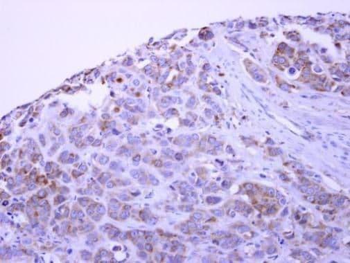 PACSIN1 Antibody in Immunohistochemistry (Paraffin) (IHC (P))