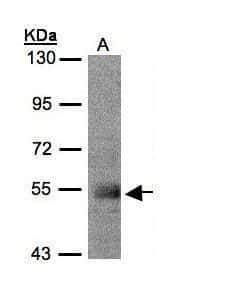 PACSIN1 Antibody in Western Blot (WB)