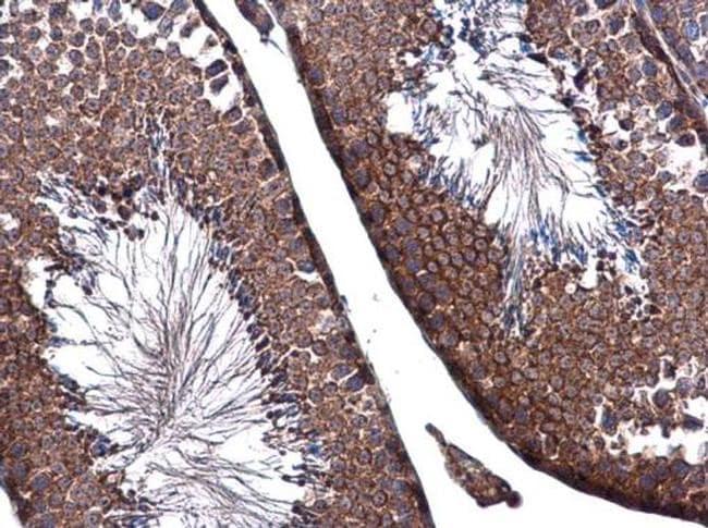 ZO-1 Antibody in Immunohistochemistry (Paraffin) (IHC (P))