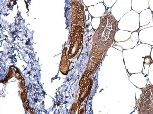 CD146 Antibody in Immunohistochemistry (Paraffin) (IHC (P))