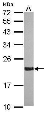 RAP2A Antibody in Western Blot (WB)